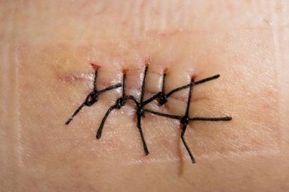 skin cancer melanoma