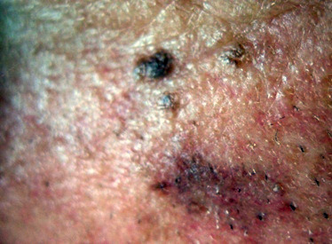 skin cancer warning signs